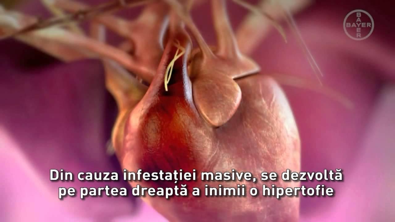 cum arată giardiaza? ganglionii limfatici în zona inghinală a negilor