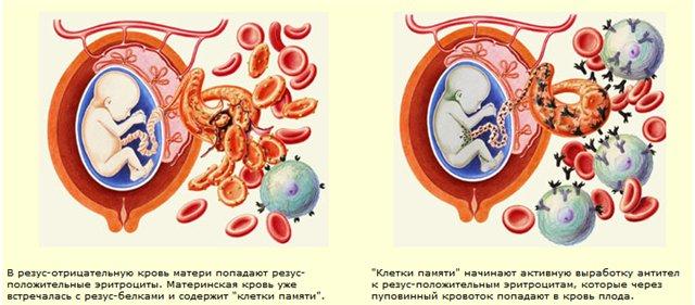 anticorpi împotriva antigenelor helmintice