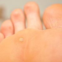 foot warts hpv