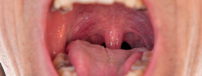 como es el papiloma en la boca colorectal cancer usmle