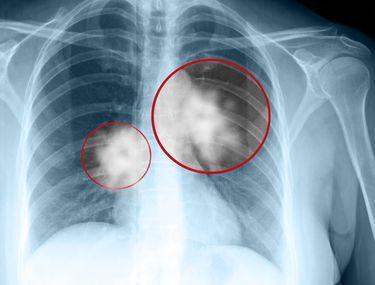 cancer colon ultima faza simptome