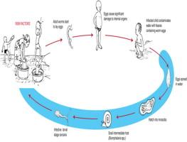 schistosomiasis lake victoria hpv virus and fibroids