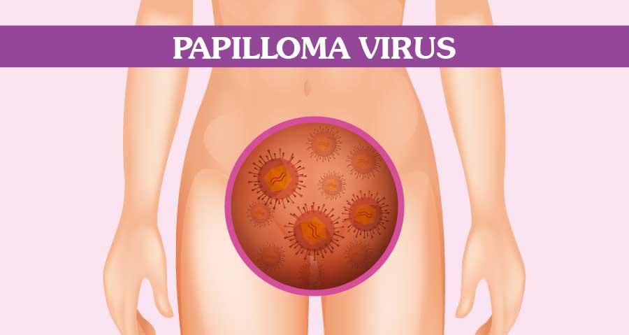 papilomul tratamentului uterin
