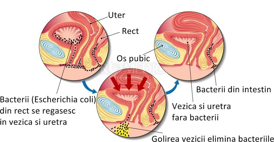 bacterii prezente in urina papilom pe glanda mamară