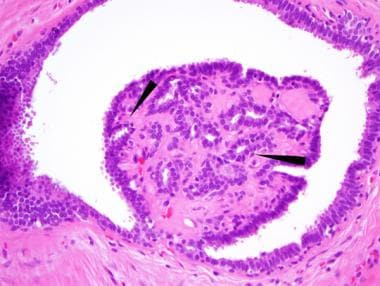 intraductal papilloma pathology