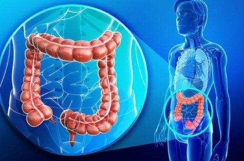 colonul natural curăță paraziții simptomele viermilor din corpul uman