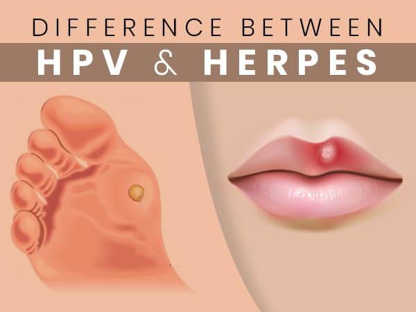 herpes hpv type simptome cancer la plamani
