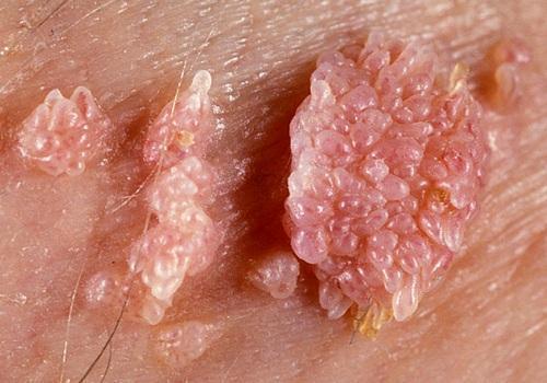 hpv cancer rare peritoneal cancer death