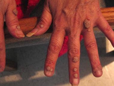 Human papillomavirus infection warts on hands. Venereal Wart (Condyloma acuminata)