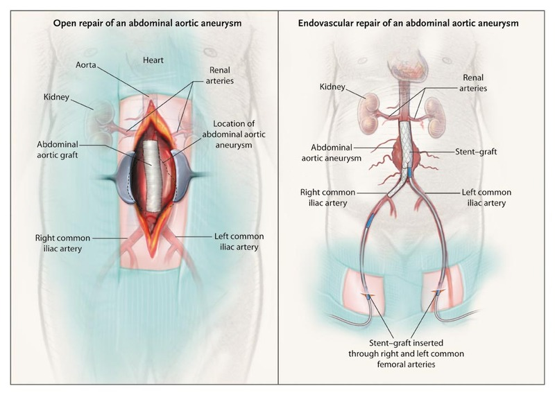 cancer and abdominal aortic aneurysm