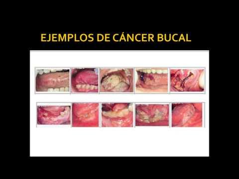 cancer bucal monografia paraziti les protozoaires