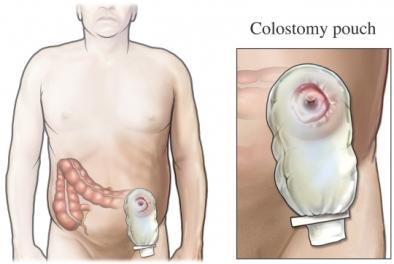hpv cancer causing types Programul de detoxifiere a colonului curăță biomarul