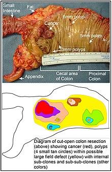 cancer colorectal metastatique stade 4 ciclu de dezvoltare pinworm