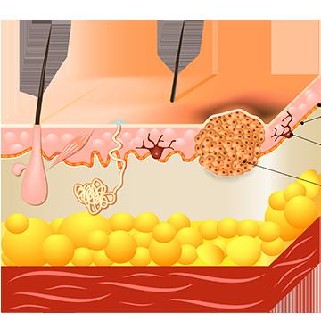cancer de piele pe fata simptome