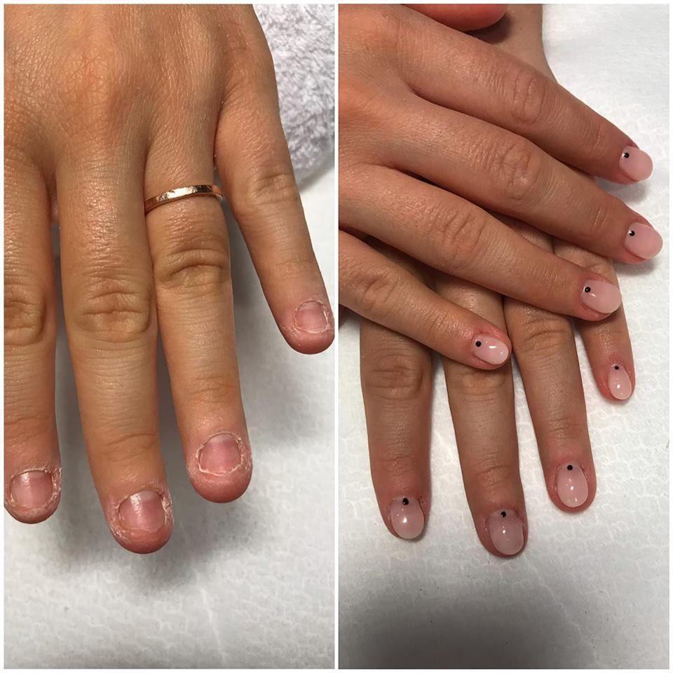 cancer de unghie