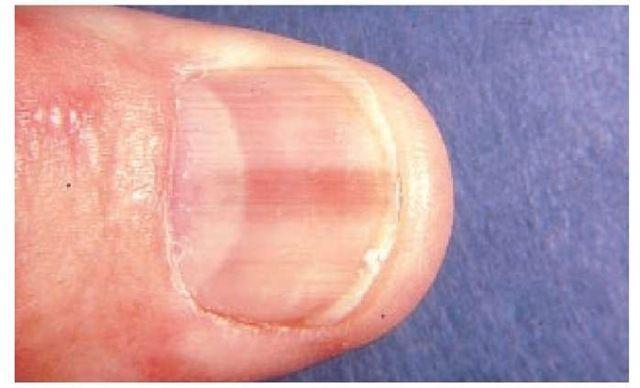cancer de unghie recenzii de detoxifiere a colonului de nuc