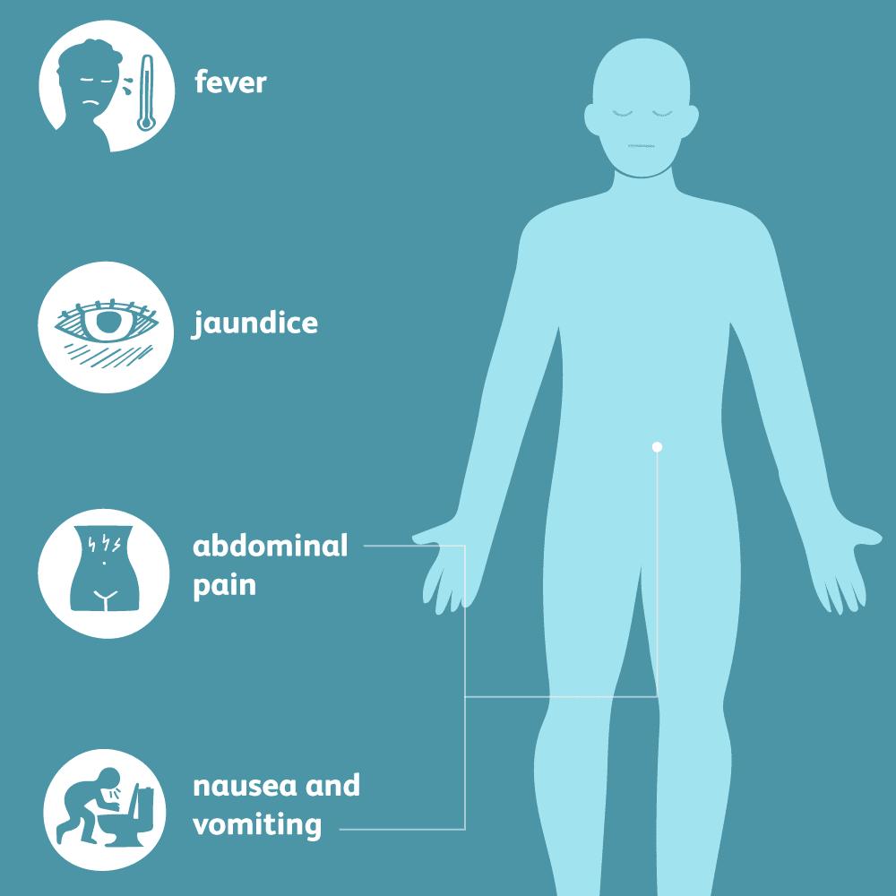 cancer jaundice abdominal pain adulți de vierme rotunde mâncând