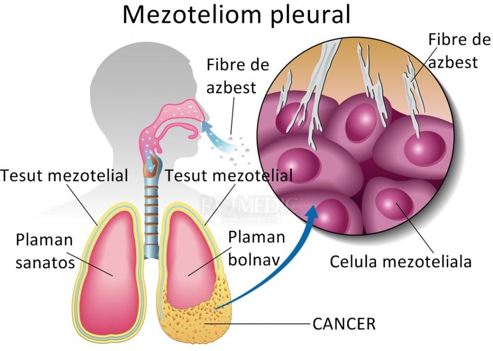 cancer malign la plamani medicament antihelmintic un comprimat