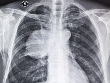 cancer malign la plamani kako leciti hpv infekciju