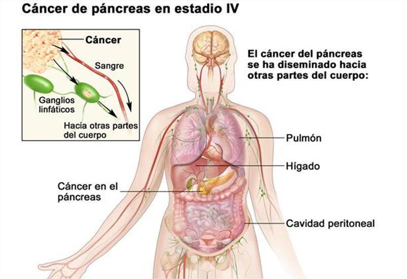 Cancer no hodgkin etapa 4 Este cel mai eficient medicament antiparazitar natural