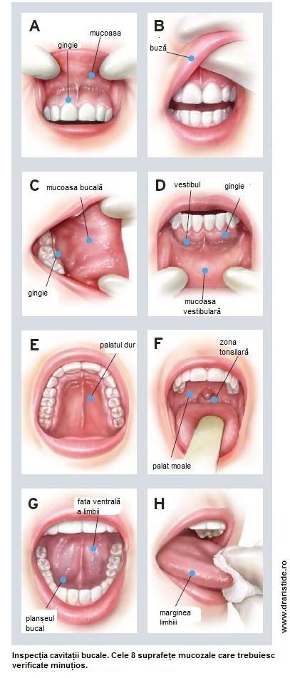 Cancer oral - cauze, simptome, tratament