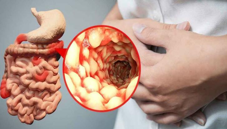 terapie cu helmint în boala Crohn papilom în gură droguri de tratament