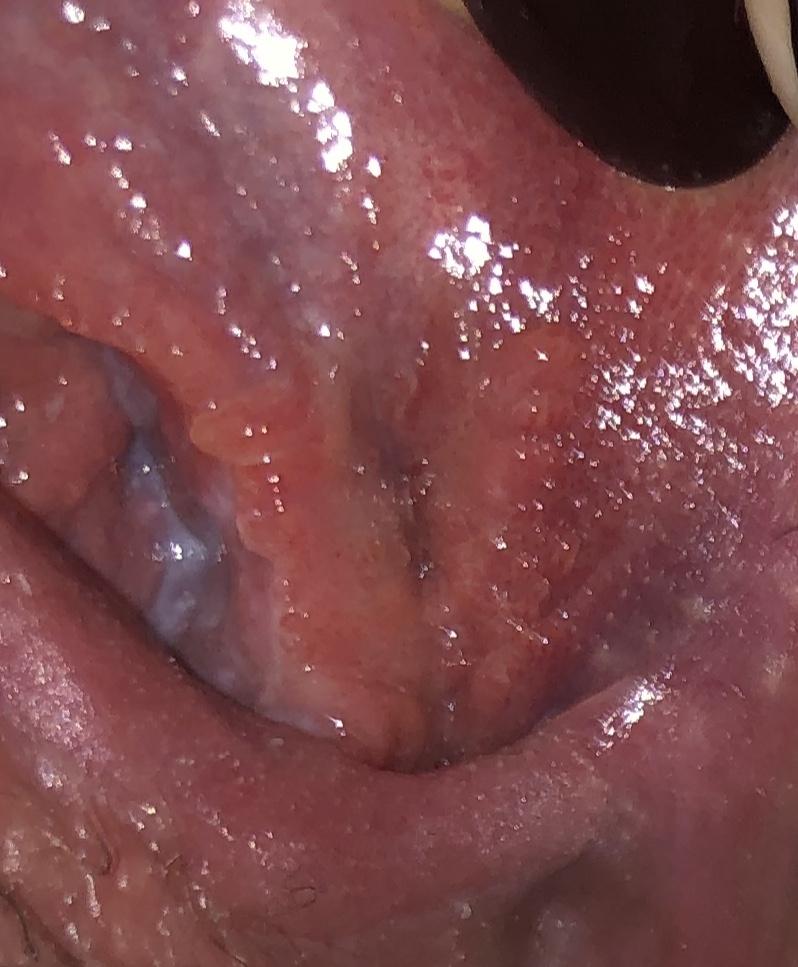 hpv si herpes genital papiloma de seno