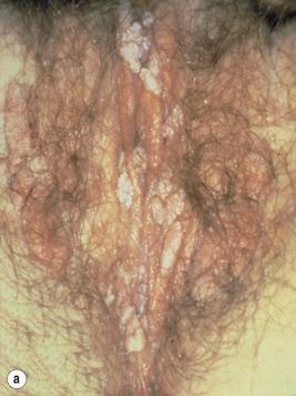 helminți și protozoare ce este pot exista condiloame în vezică