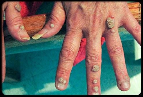 nasal squamous papilloma pata de giardia gram