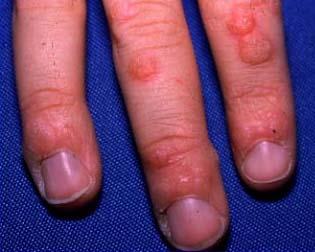 virus del papiloma nombre cientifico tratamentul trematodelor parazite