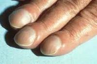 cornuri între tratamentul degetelor de la picioare tratamentul cu vierme taur