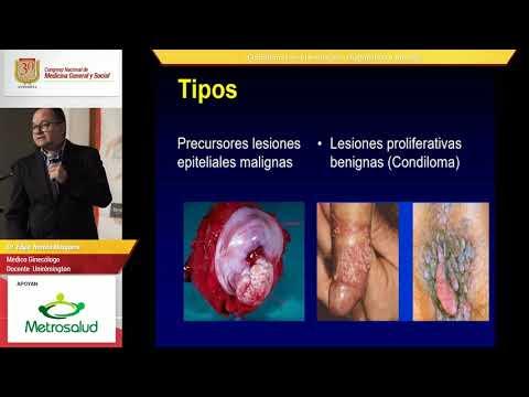 curățarea pielii de paraziți laryngeal papillomas prognosis