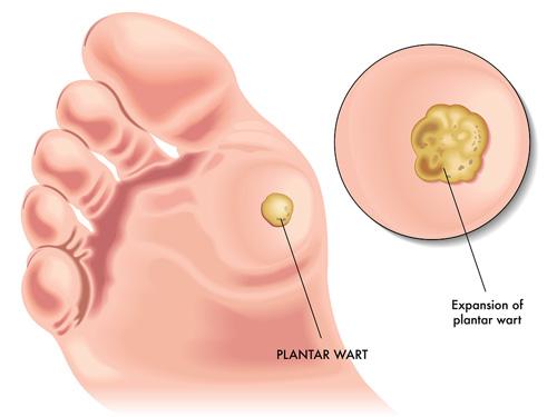 paraziti intestinali in sarcina simptome
