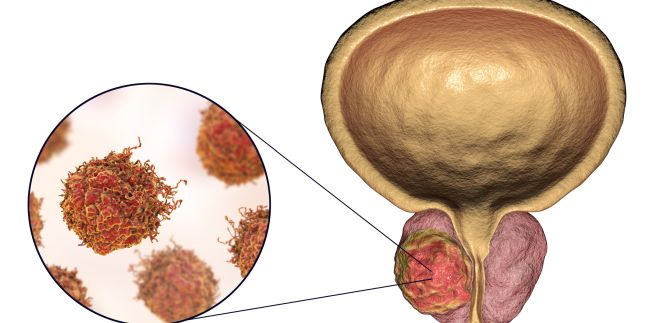 simptome după tratarea viermilor