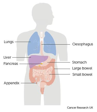 neuroendocrine cancer bowel paraziti intestinali la copii de 3 ani