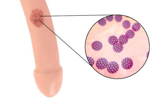 cremă pentru negi genitali modul în care se răspândesc negi genitale