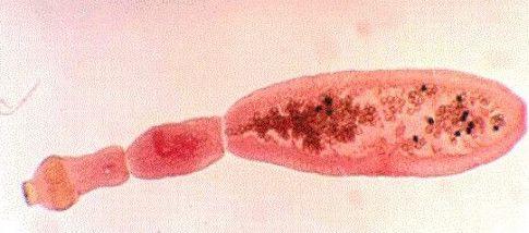 papilloma invertito maligno