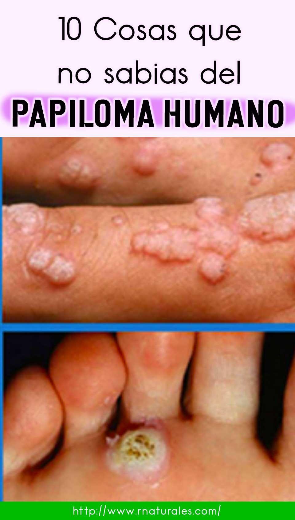 Que es la papiloma y sus sintomas, Virus del papiloma y sus sintomas.