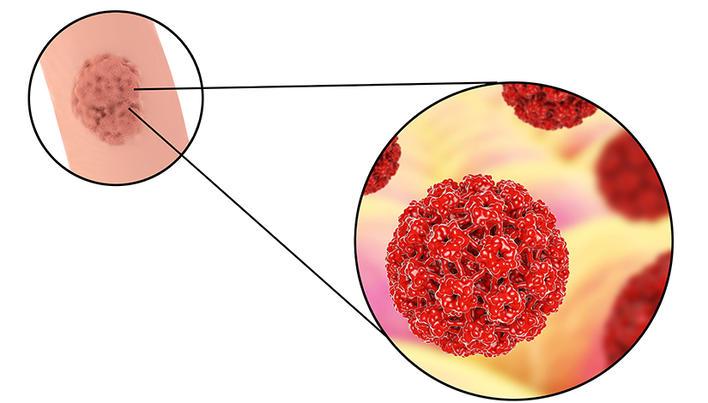 giardia cane e contagiosa pastile roz mari pentru viermi