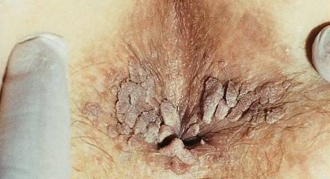 distrugerea verucilor genitale