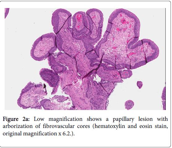 squamous papilloma lung adaptările gazdelor protejează paraziții