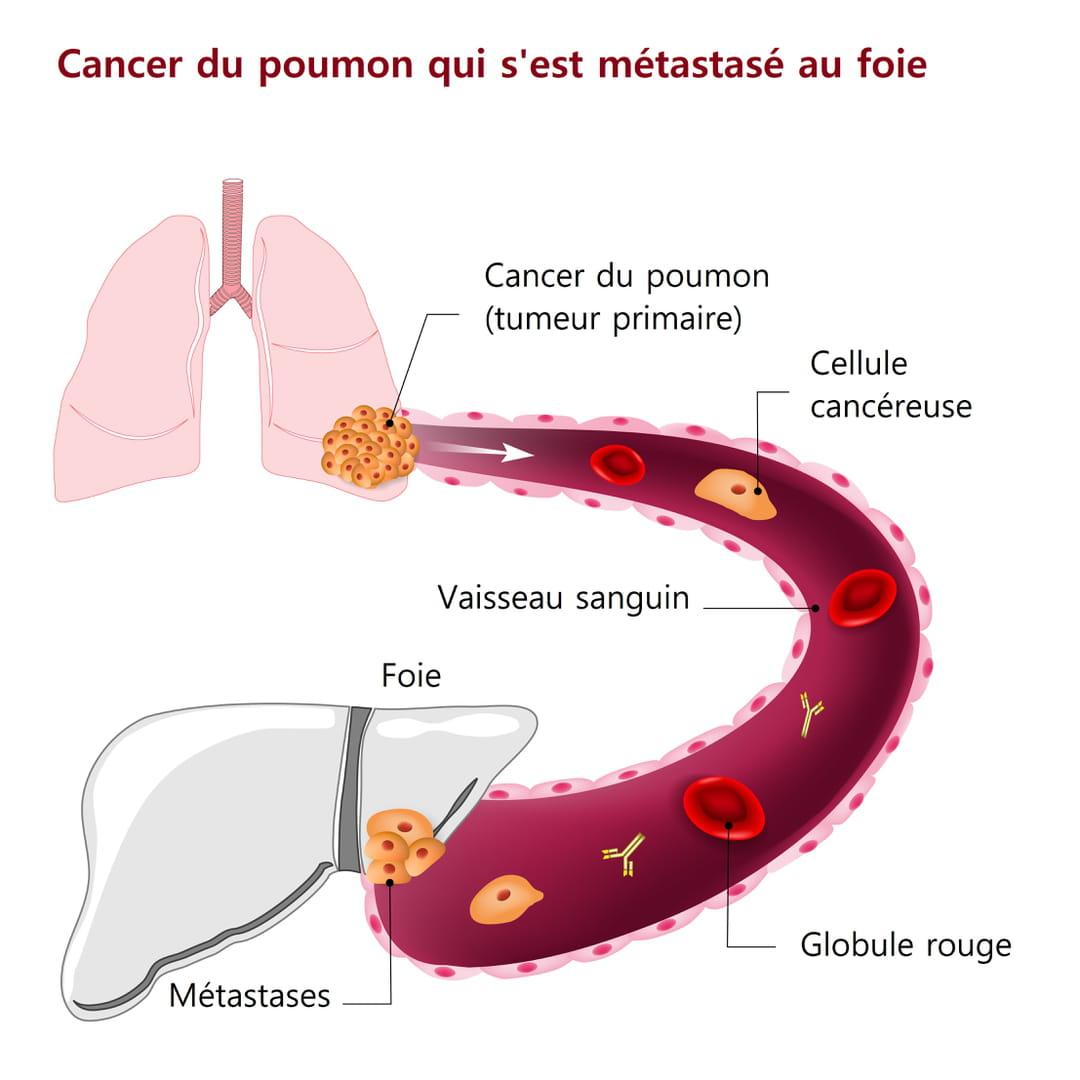 Cancerul de ficat - Traducere în franceză - exemple în română | Reverso Context