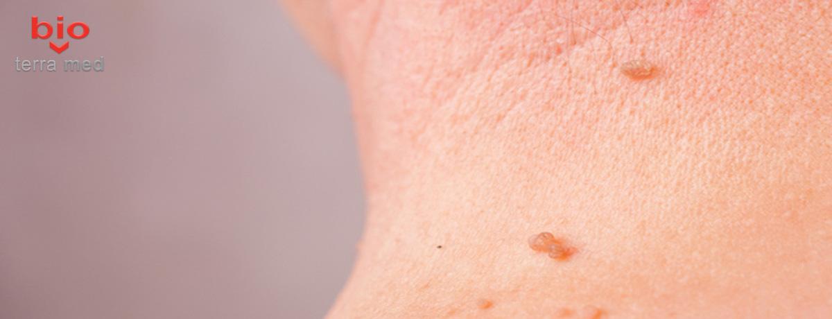 papiloame pe gât cauzează