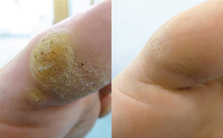 cancerul in romania cum se tratează negii pe piele