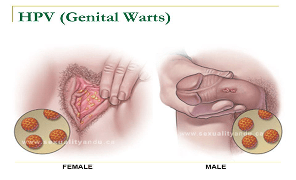 cancer and genital warts