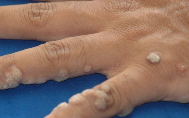 traitement papillomavirus enceinte Condiloamele din gură sunt periculoase?