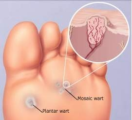 warts foot sole