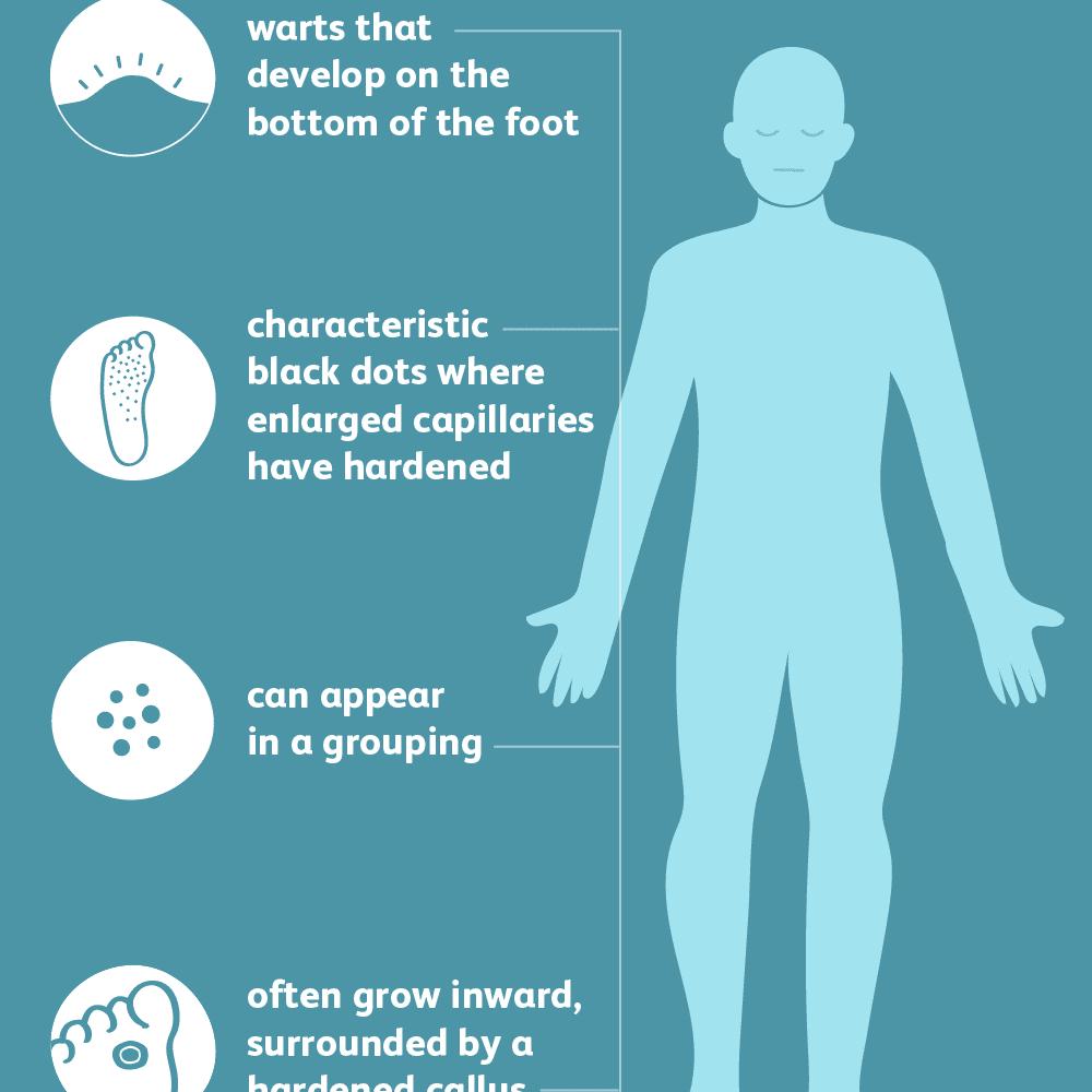 foot wart diagnosis