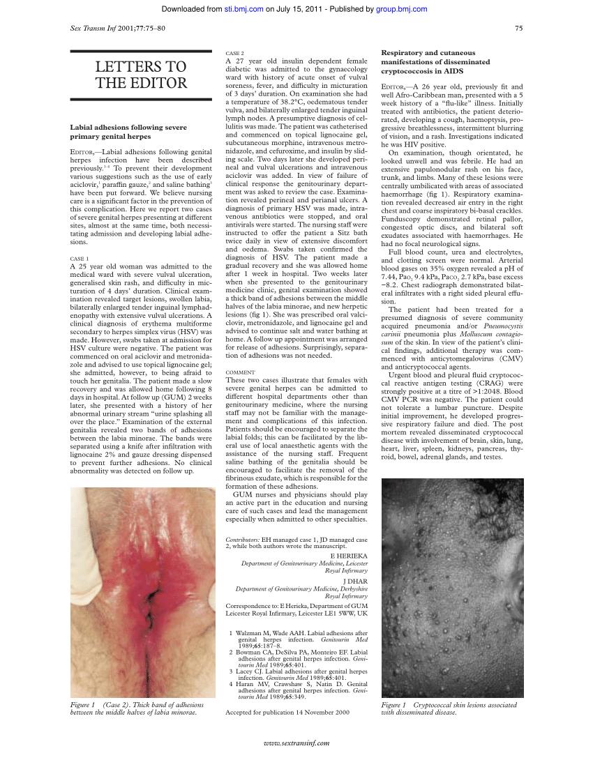 forum condilom vagin genital helmintox side effects
