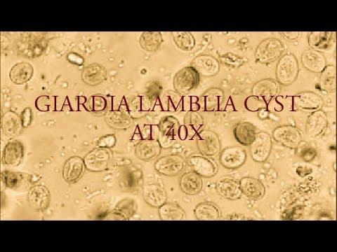 giardia cât durează simptomele enterobius vermicularis resistente